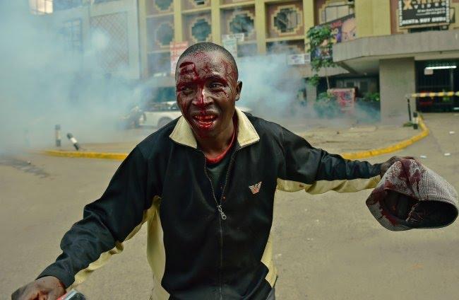 injured-protester-nairobi